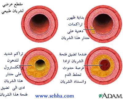 021517_2022_1 الامراض التي يسببها اضطراب البروتينات الشحمية