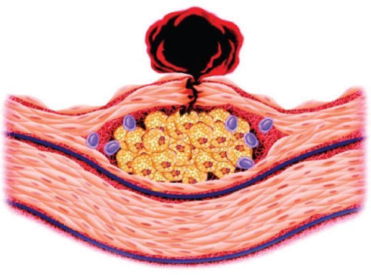 021517_2022_2 الامراض التي يسببها اضطراب البروتينات الشحمية