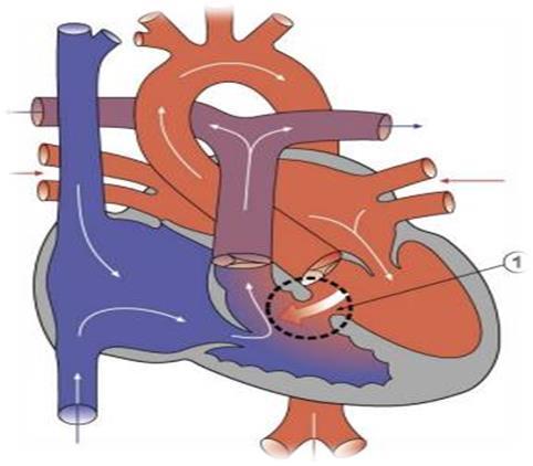 021617_1601_1 أمراض القلب الخلقية