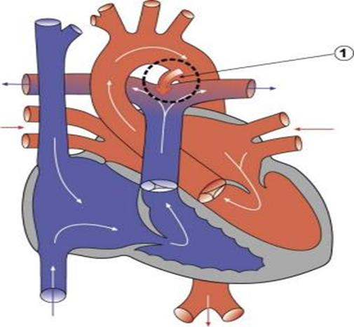 021617_1601_2 أمراض القلب الخلقية