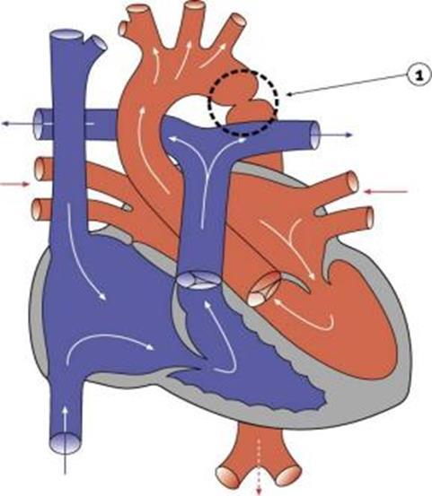 021617_1601_3 أمراض القلب الخلقية