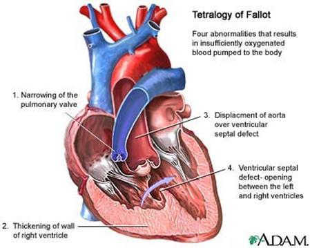 021617_1601_4 أمراض القلب الخلقية