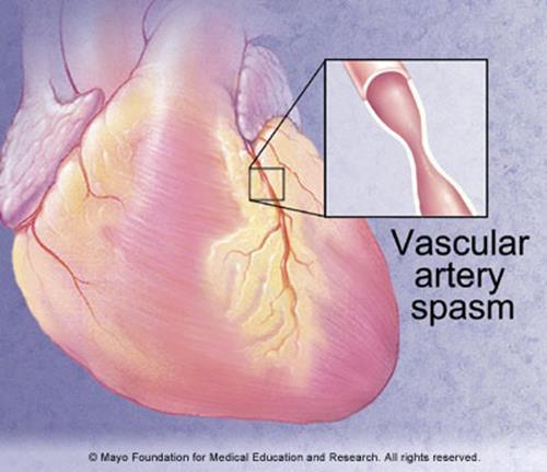 021617_1602_2 أمراض القلب الإكليلية: