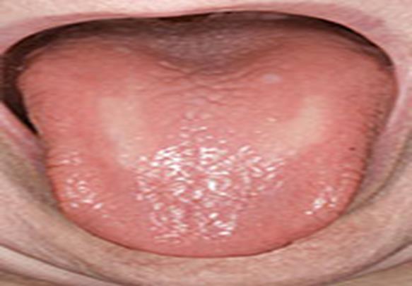 022517_2207_1 أمراض الجلد الفطرية