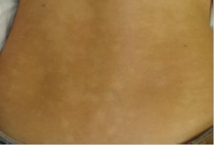 022617_0202_1 نقص الميلانين البقعي المترقي :PROGESSIVE MACULAR HYPOMELANOSIS (PMH)