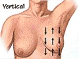 7-2 سرطان الثدي - الموجودات السريرية