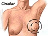 7-3 سرطان الثدي - الموجودات السريرية