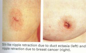 7-300x187 سرطان الثدي - الموجودات السريرية
