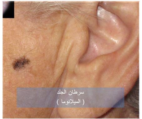 030717_2234_1 اعراض سرطان الجلد الميلانوما