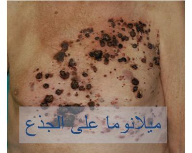030717_2234_2 اعراض سرطان الجلد الميلانوما