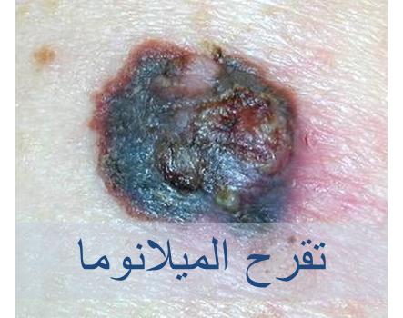 030717_2234_3 اعراض سرطان الجلد الميلانوما