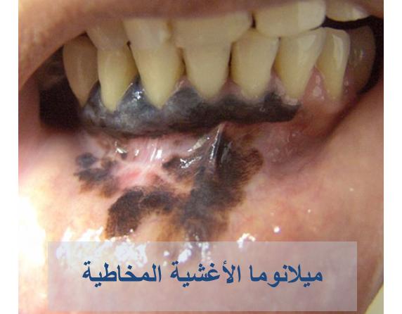 030717_2234_4 اعراض سرطان الجلد الميلانوما