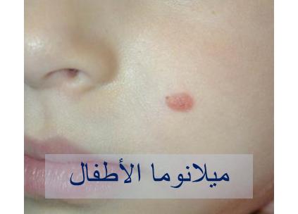 030717_2234_6 اعراض سرطان الجلد الميلانوما