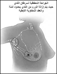14-229x300 سرطان الثدي - علاج سرطان الثدي